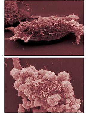 Científicos logran que células del melanoma se autodestruyan