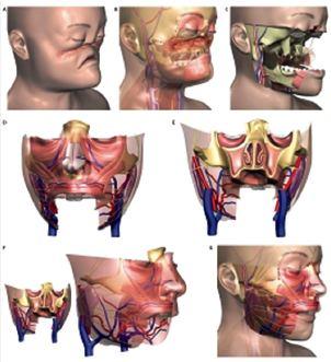 Realizan primer transplante parcial de rostro en México