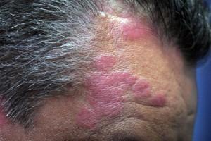 El tratamiento es posible la psoriasis