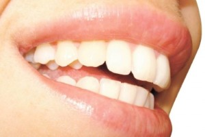 La boca, un universo de bacterias